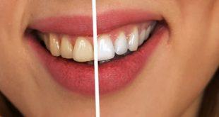 Jangan Anggap Remeh, Rawat Gigi Anda Dengan Baik